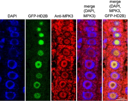 Immunofluorescence assays show the location of key components in the pathway to plant immunity: left, blue indicates cell nuclei; second left, HD2B within the nucleolus; center, MPK3 distributed both inside and outside the nuclei; second right and right, superimpositions of these images clearly show the differential location of HD2B and MPK3 within plant cells.