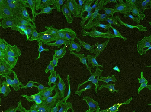 The effect of plant fractions of HeLa cells. Here we show nuclear- actin-tubulin organelles that have been stained by fluorescent probes.