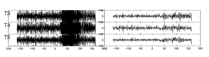 The original EEG at the start of a seizure (left) compared to the signal when cleaned from noise (right).